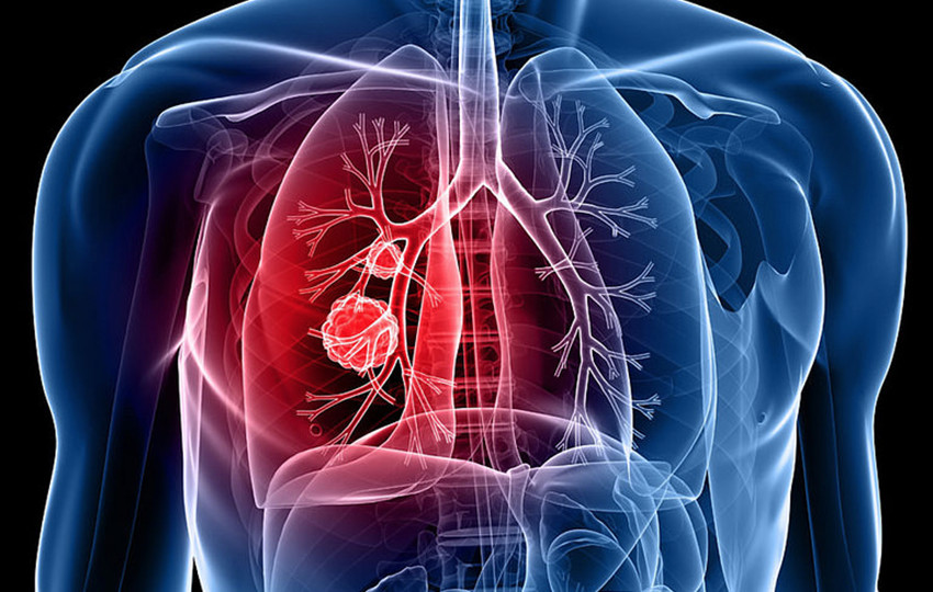 akciger kanseri - Tüberküloz
