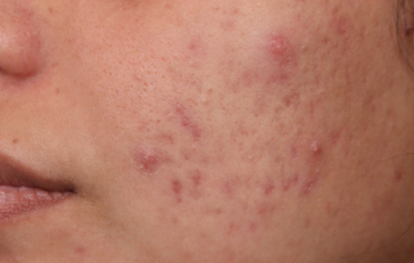 deri has1 - Kanserleşmeyen Cilt Hastalıkları