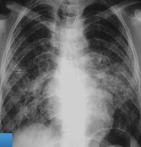 ekran resmi 2015 02 07 00 29 56 - İlk Hasta (Kot Kumlamacılığı ve Silikozis Anıları-1)