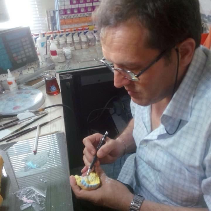 dis teknisyeni orhan cam - Silikozis hastalığına yakalanan diş teknisyeni: Doktor 200 TL daha fazla kazansın diye ölüyor teknisyenler!