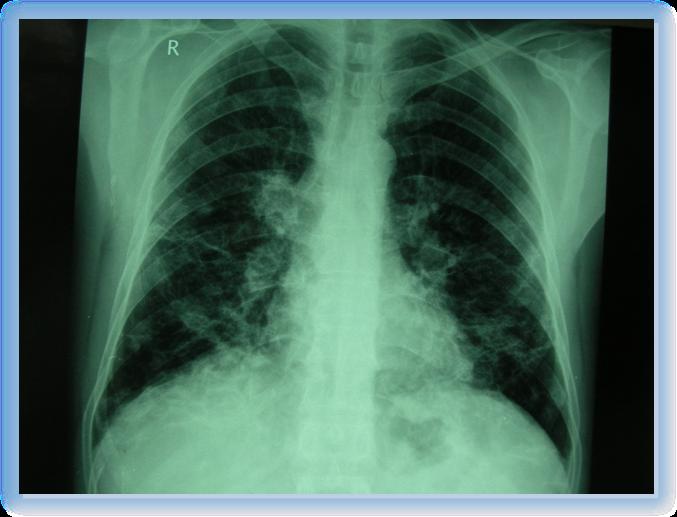 sitma1 - Bir yün işçisi anlatıyor: Bende Sıtma Araştırması Bile Yaptılar!