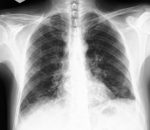 sitma3 - Bir yün işçisi anlatıyor: Bende Sıtma Araştırması Bile Yaptılar!