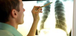 Silicosis Lung Disease QLD 1200x565 300x141 - MESLEK HASTALIĞINDAN EMEKLİ, SİLİKOZİS HASTASI İŞÇİLER: MESELE SADECE EMEKLİLİK DEĞİL; SİZ BİZİM KULAĞIMIZI KESİYORSUNUZ, KESMEDİK DİYORSUNUZ!