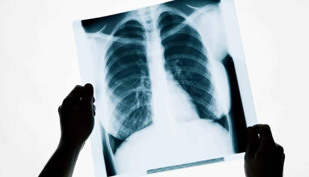 meslek hastalığı - MESLEK HASTALIKLARINDA İLLİYET BAĞI SORUNU