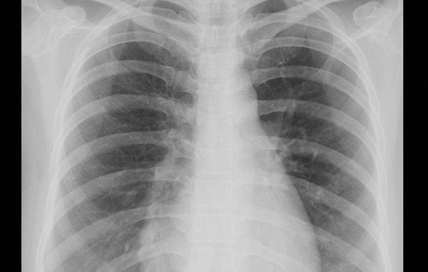 ciger jenerik1 - Silikatoz (Asbest dışındaki silikat tozları)